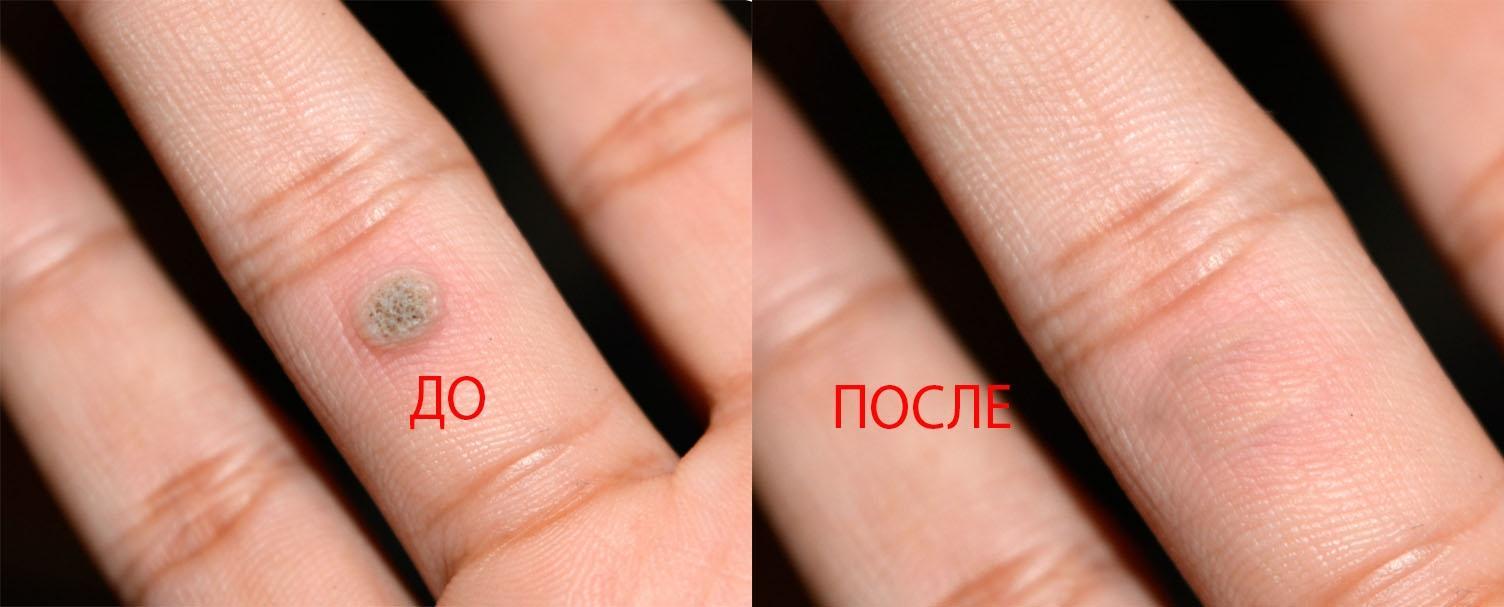 Бородавка до и после применения препарата от бородавок и пигментных пятен